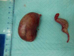腫大した精巣